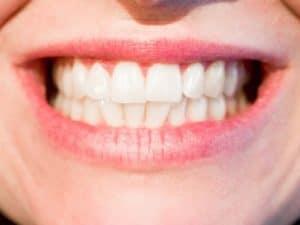 teeth whitening Dr. Dave Evans DDS