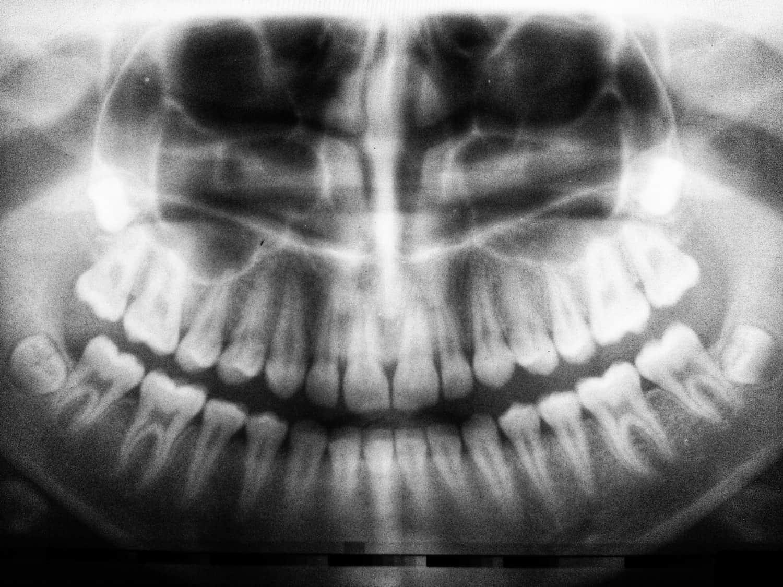 isdome teeth symptoms