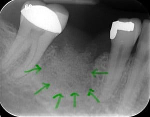 Green Arrows Highlighting the Bone Graft for Dental Implant
