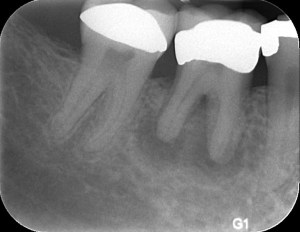 Tooth in Need of a Bone Graft & Dental Implant