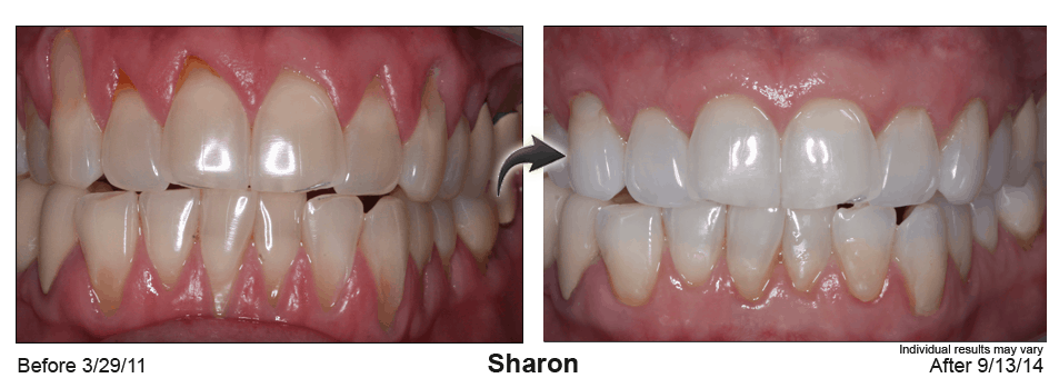 pinhole rejuvenation before and after