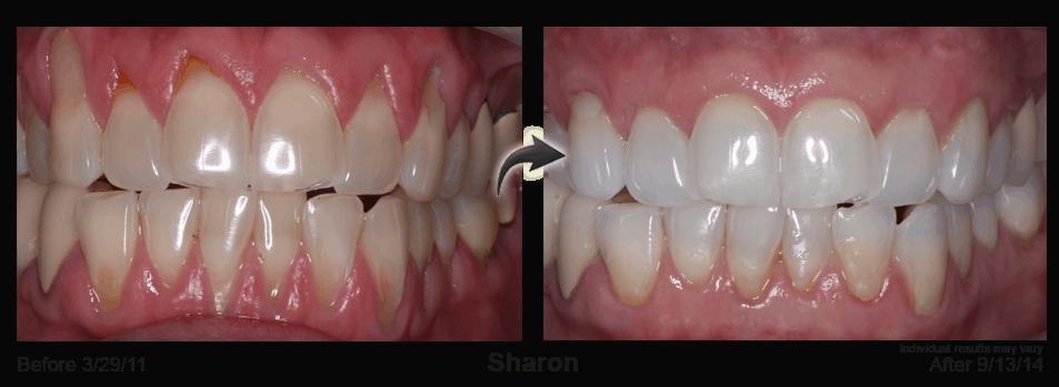 Receding Gums in need of the Pinhole Gum Rejuvenation Procedure