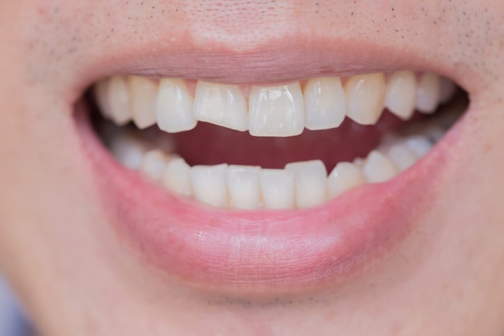 Chipped & Broken Teeth - Cosmetic and Restorative Dentist Boulder, CO